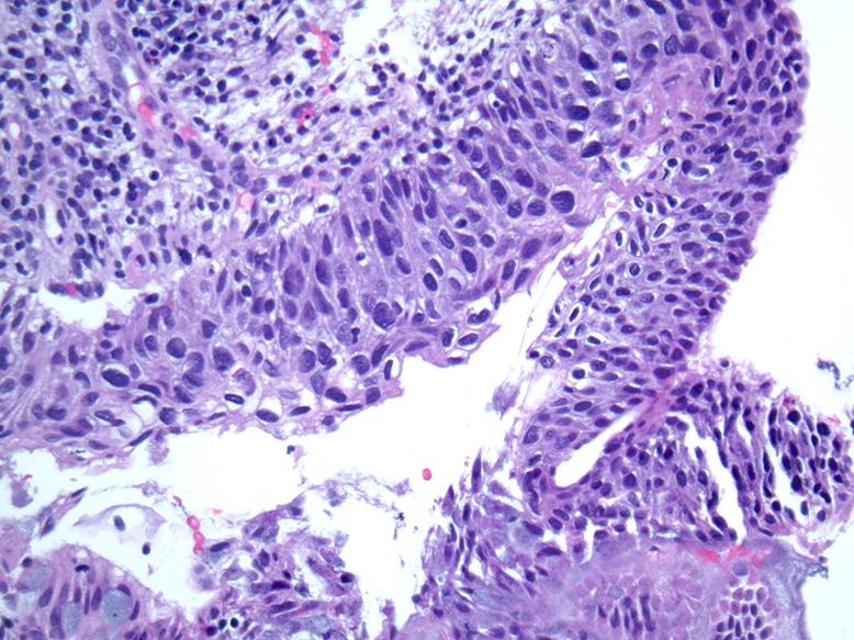 Pathology of papillomavirus - HPV (Papiloma Virus Uman) ADN-genotipare