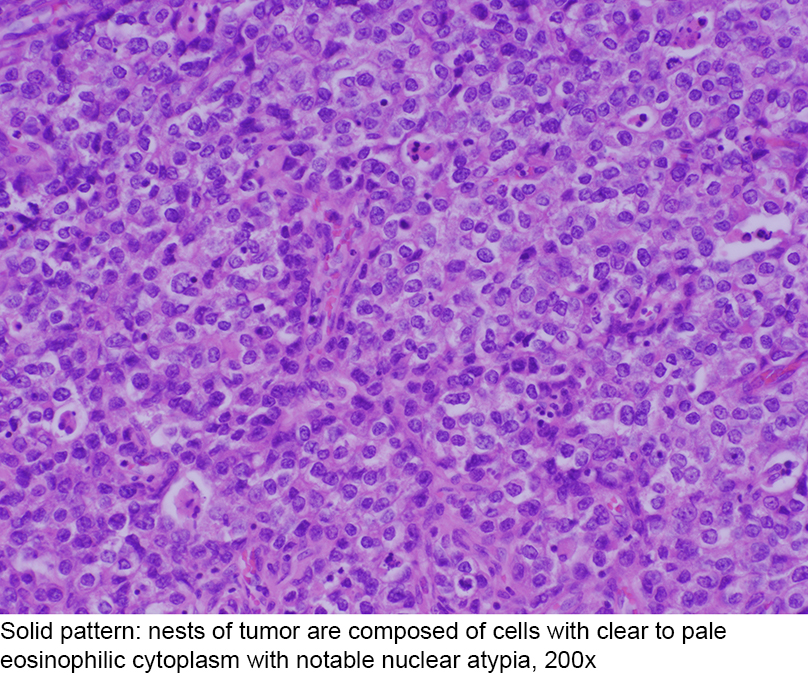 Pathology Outlines - Clear cell carcinoma (adenocarcinoma)