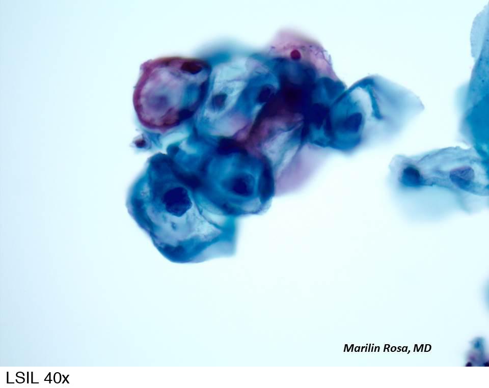 hpv vírus lsil tünetek és gyógyszerek a veseférgek ellen
