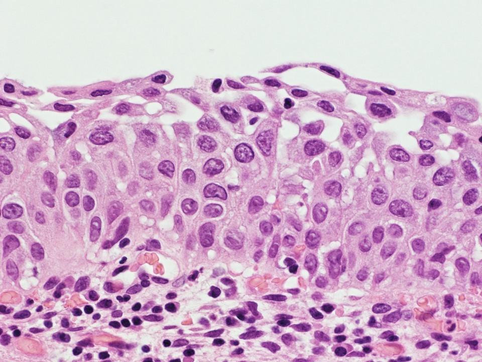 Immature squamous metaplasia