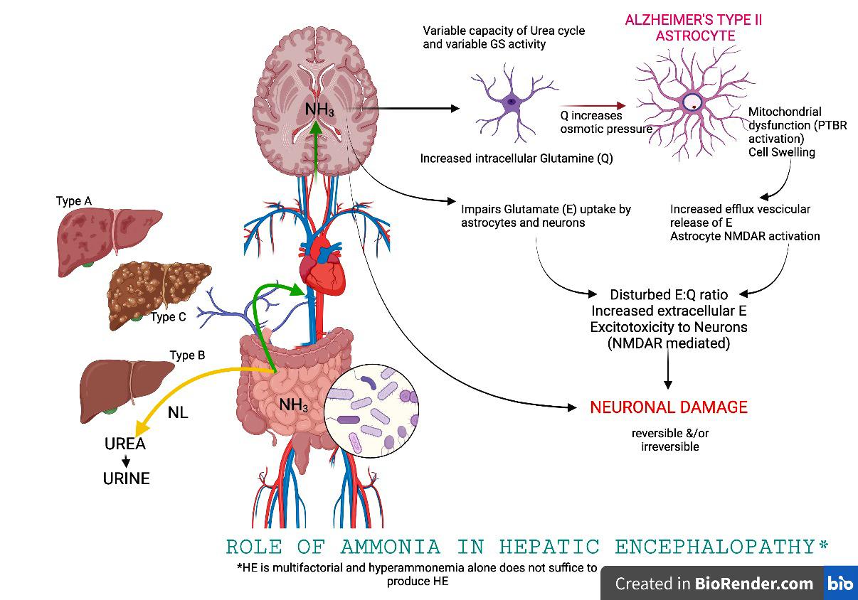 Ammonia and hepatic encephalopathy