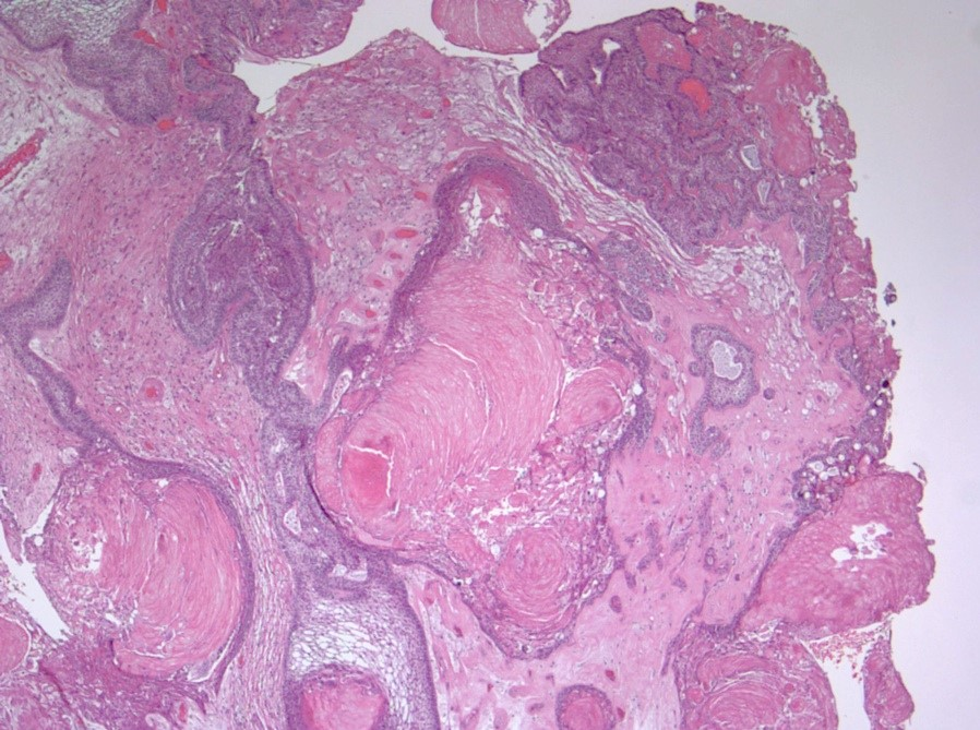 Tumor tongues
