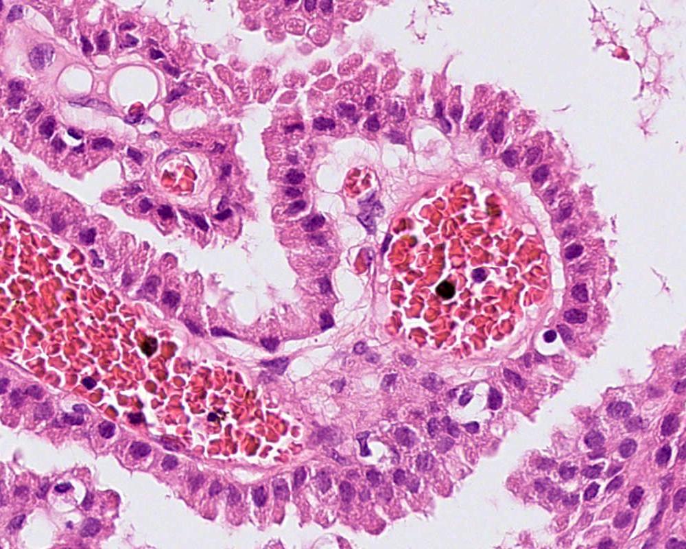 Choroid plexus papilloma