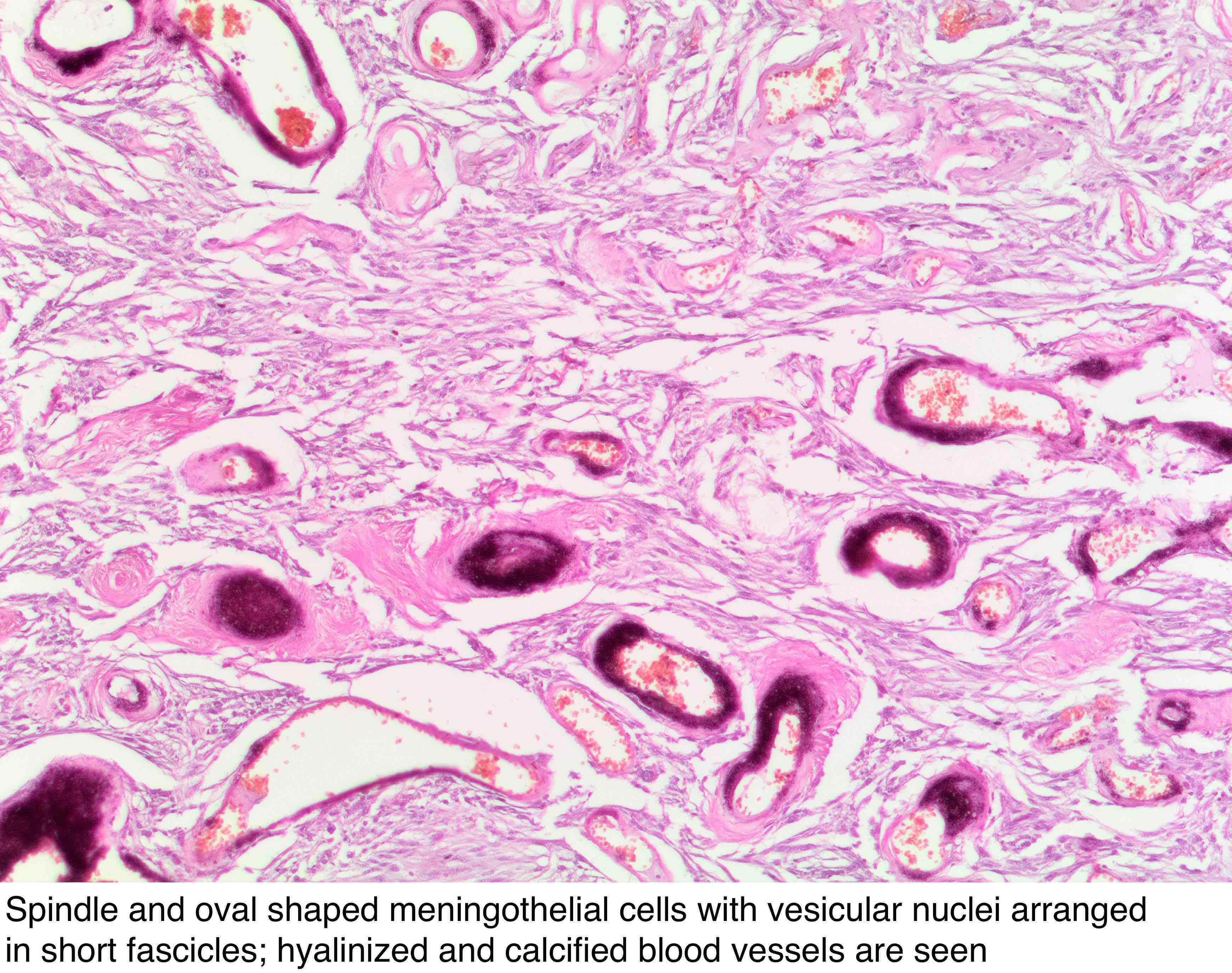 Pathology Outlines - Meningioma