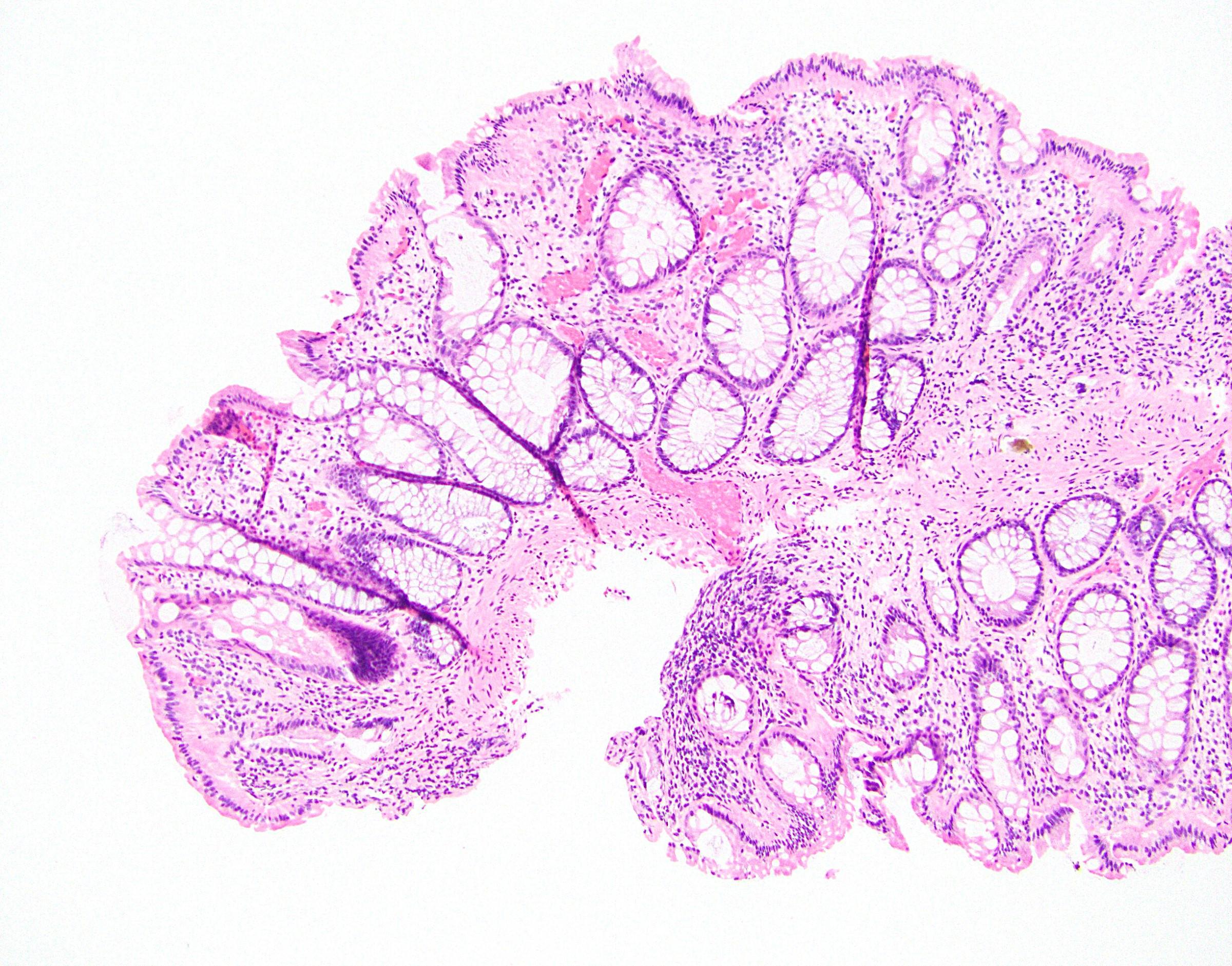 Colonic hemangioma