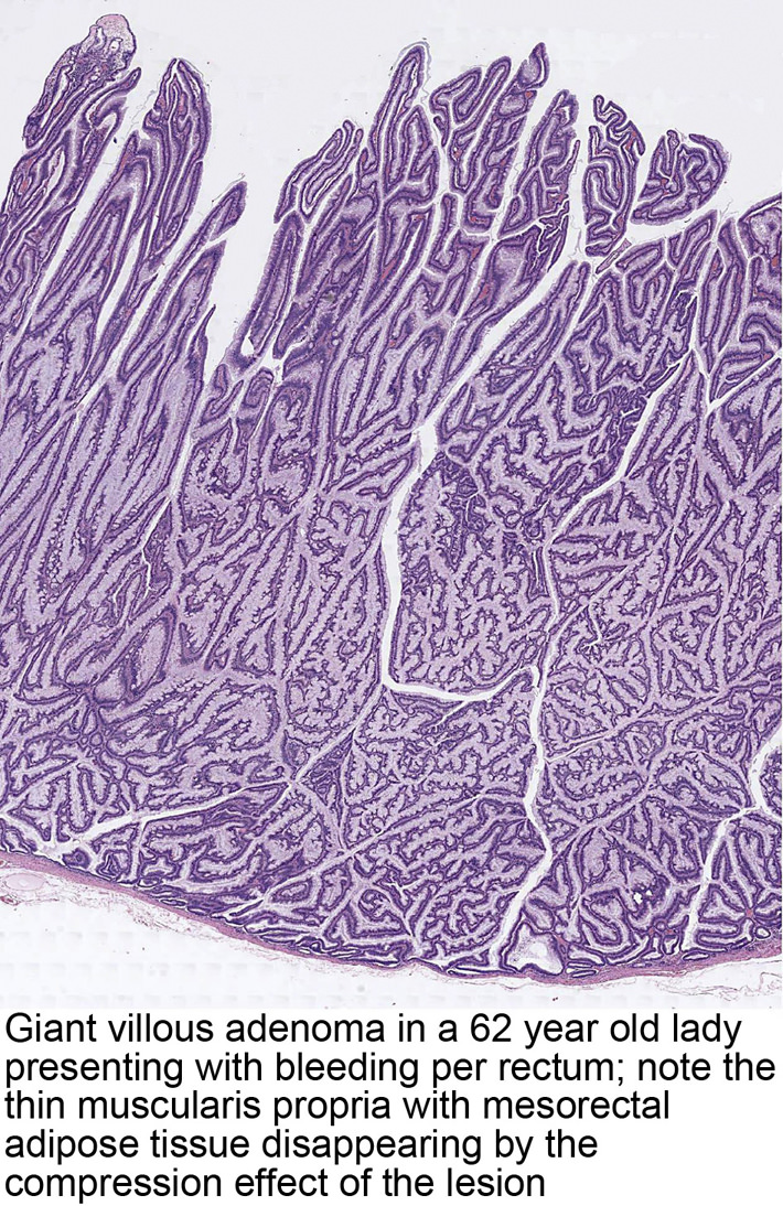 Pathology Outlines Tubulovillous Villous Adenoma