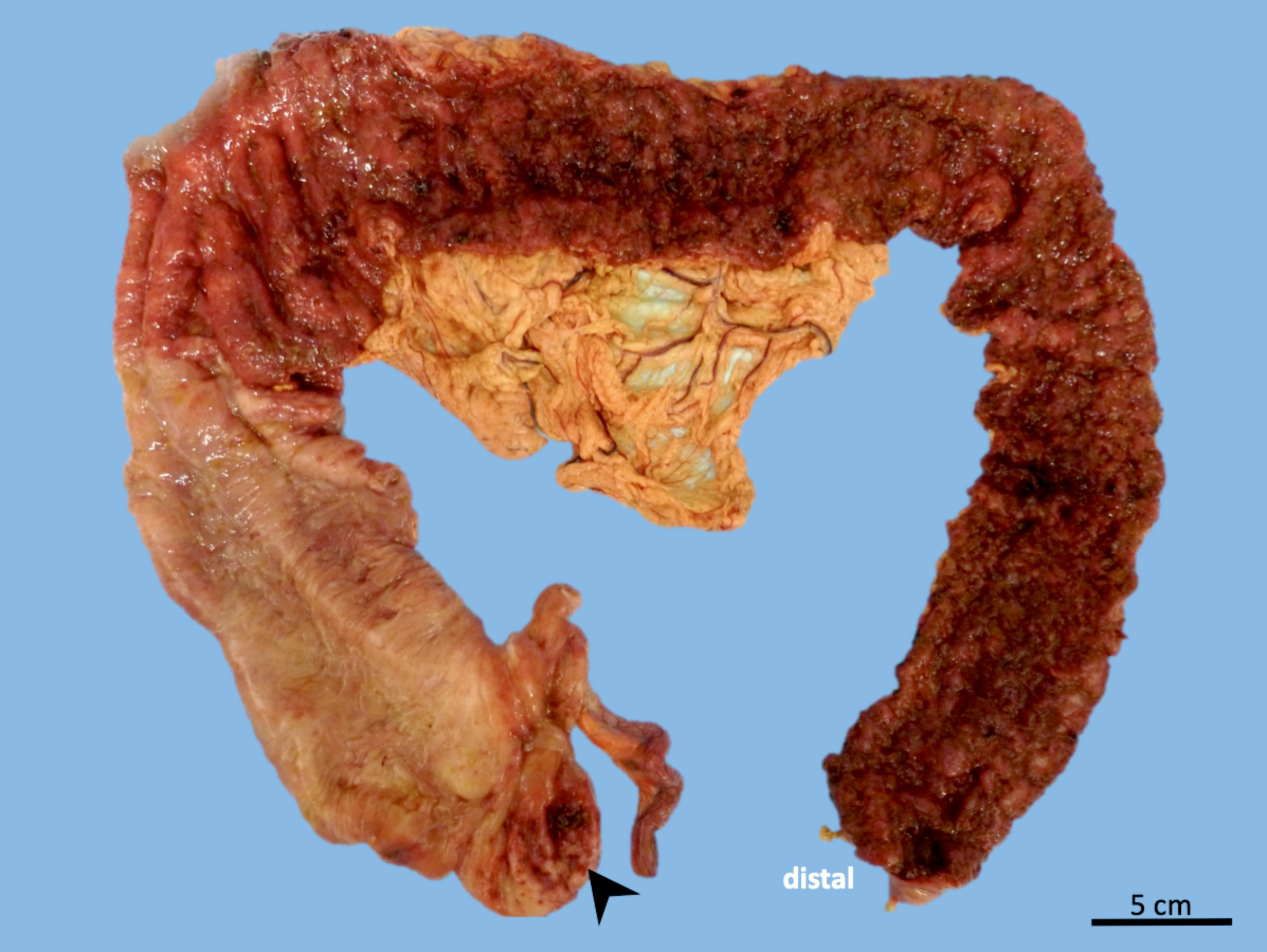 Ulcerative colitis with cecal patch