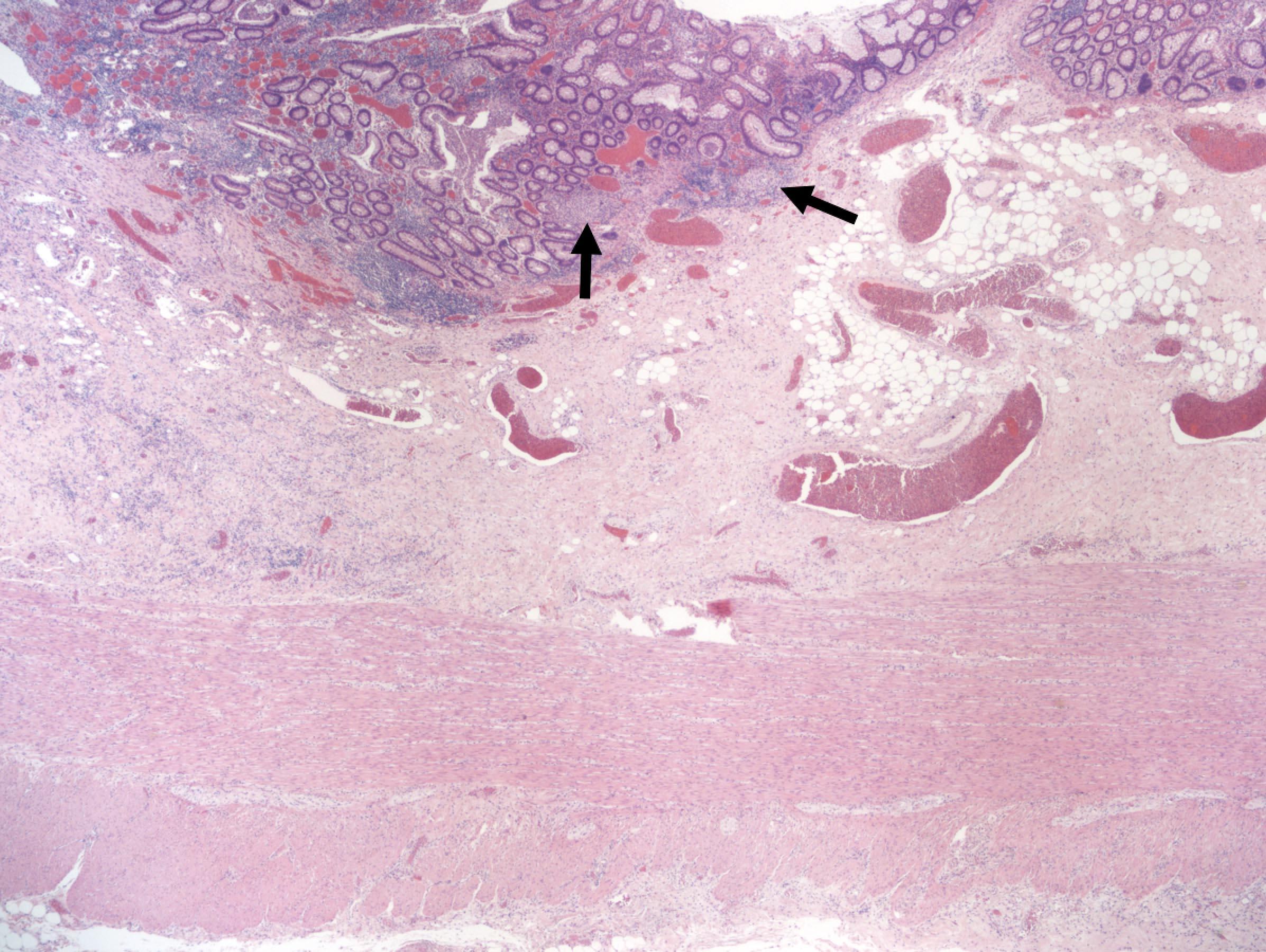 Superficial (ulcerative colitis-like) Crohn's disease