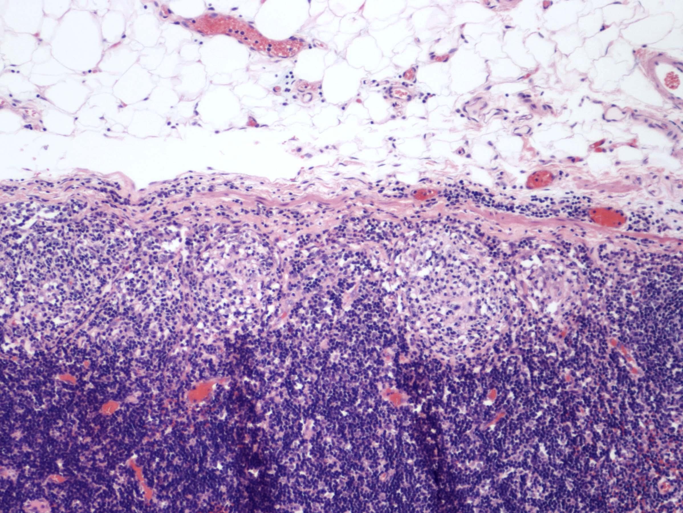 Granuloma, pericolonic lymph node