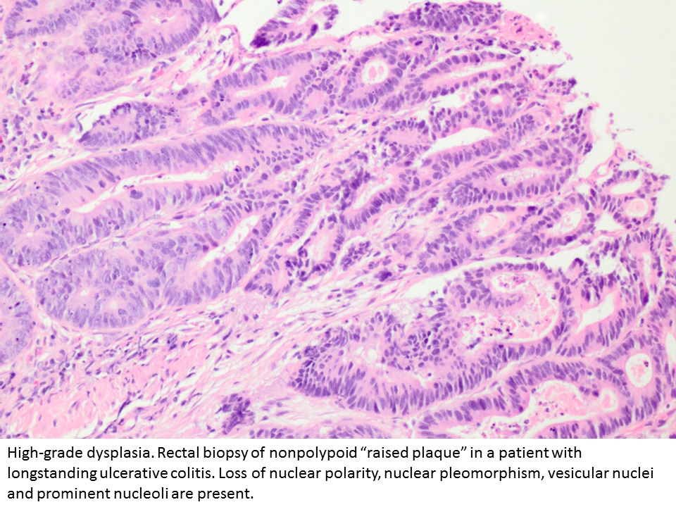 Pathology Outlines Dysplasia