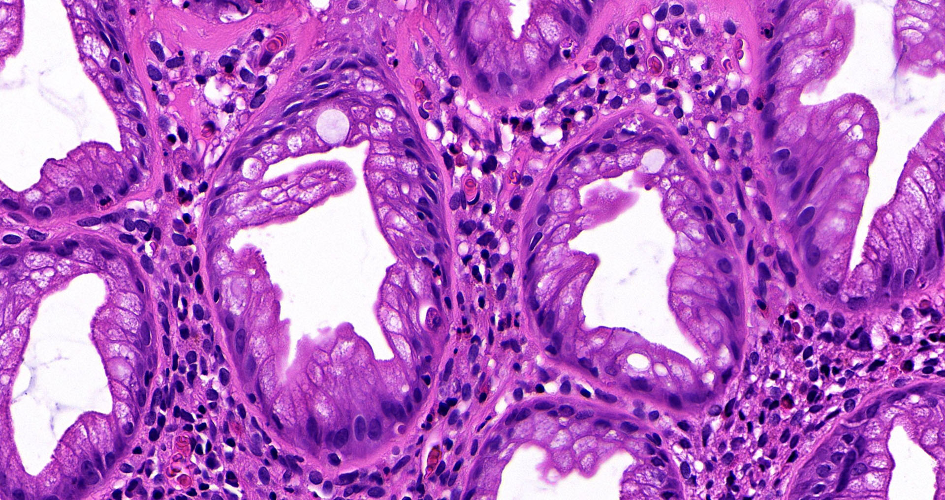 Sawtooth glands