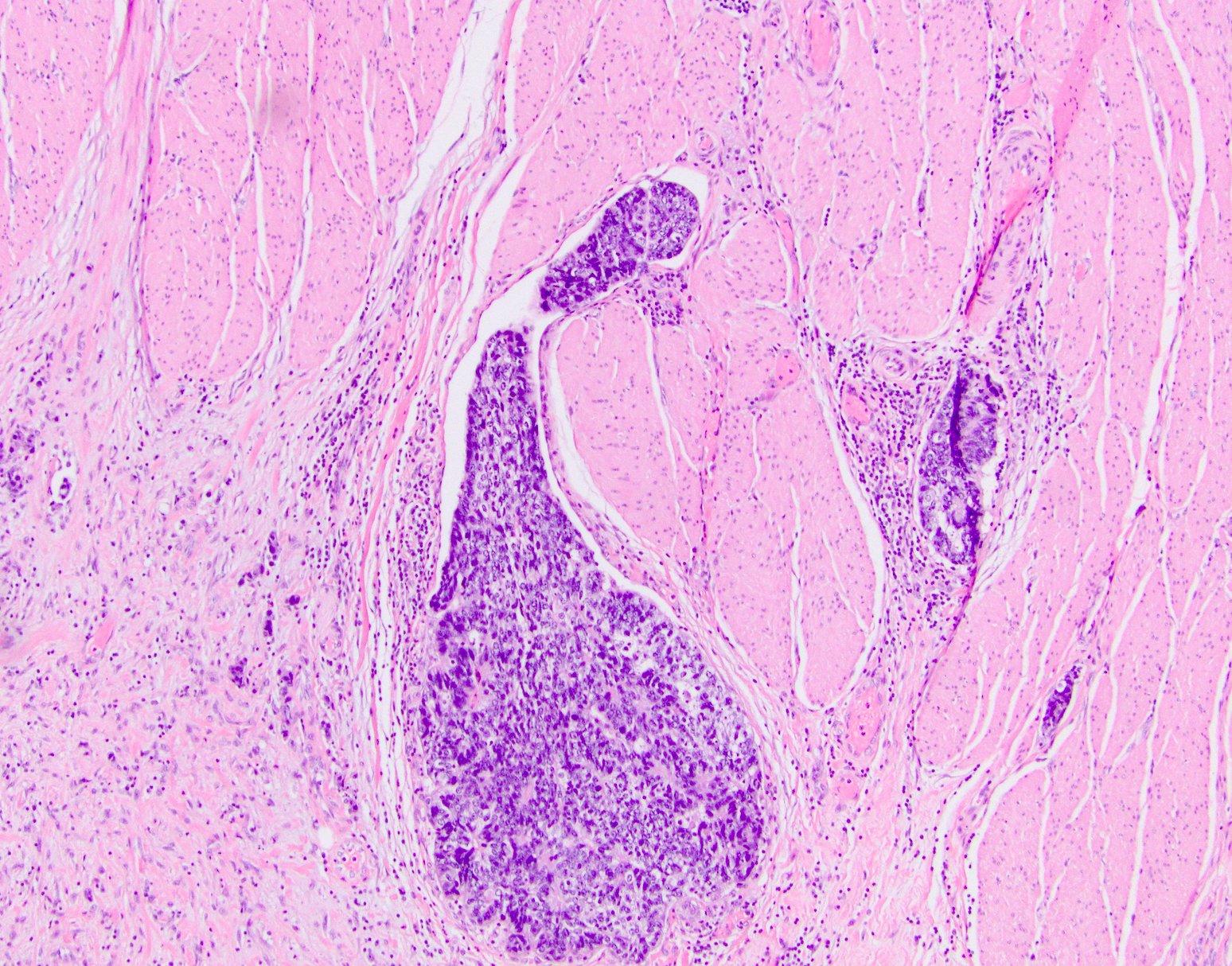 Lymphovascular invasion