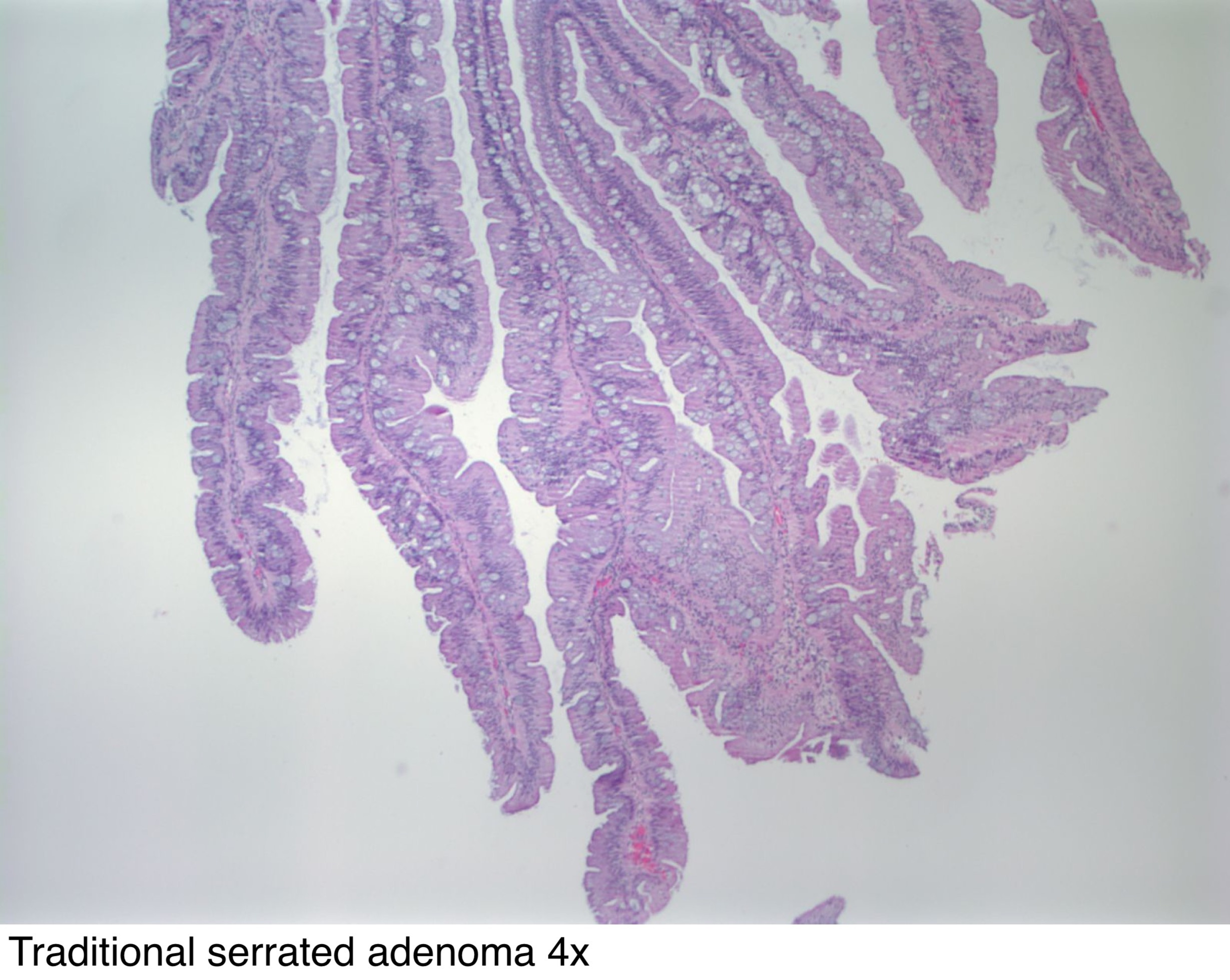 Pathology Outlines - Adenoma - general