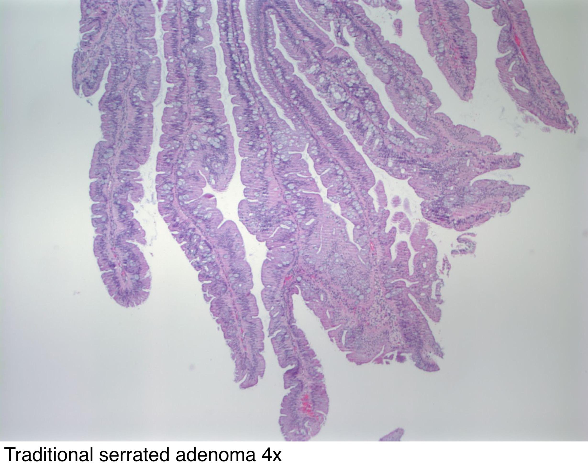 villous papilloma definition)