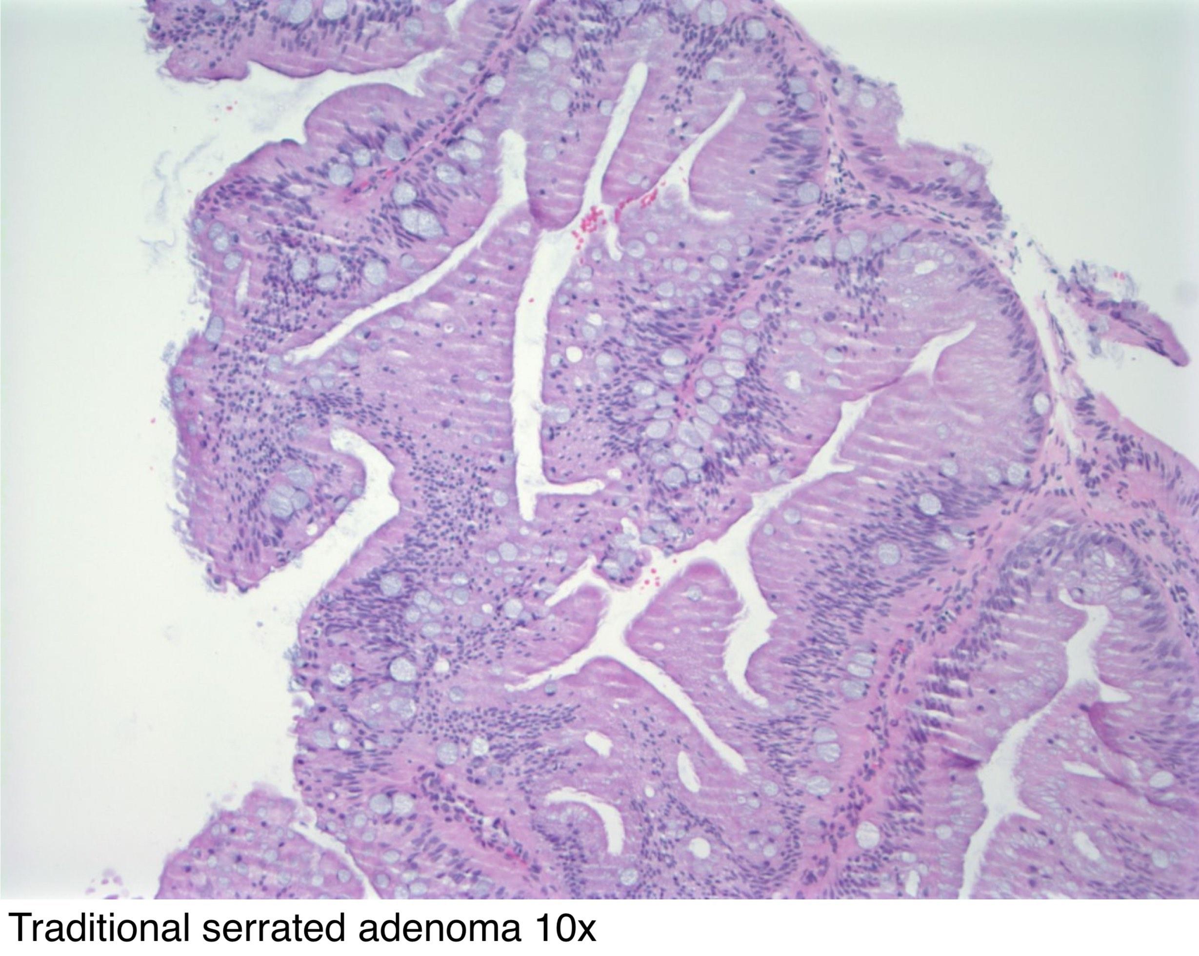 Pathology Outlines - Lactating adenoma