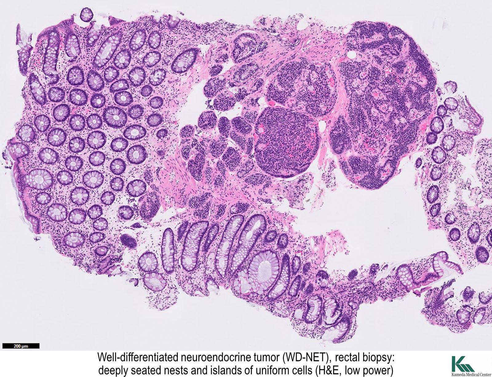 Pathology Outlines Neuroendocrine Tumor