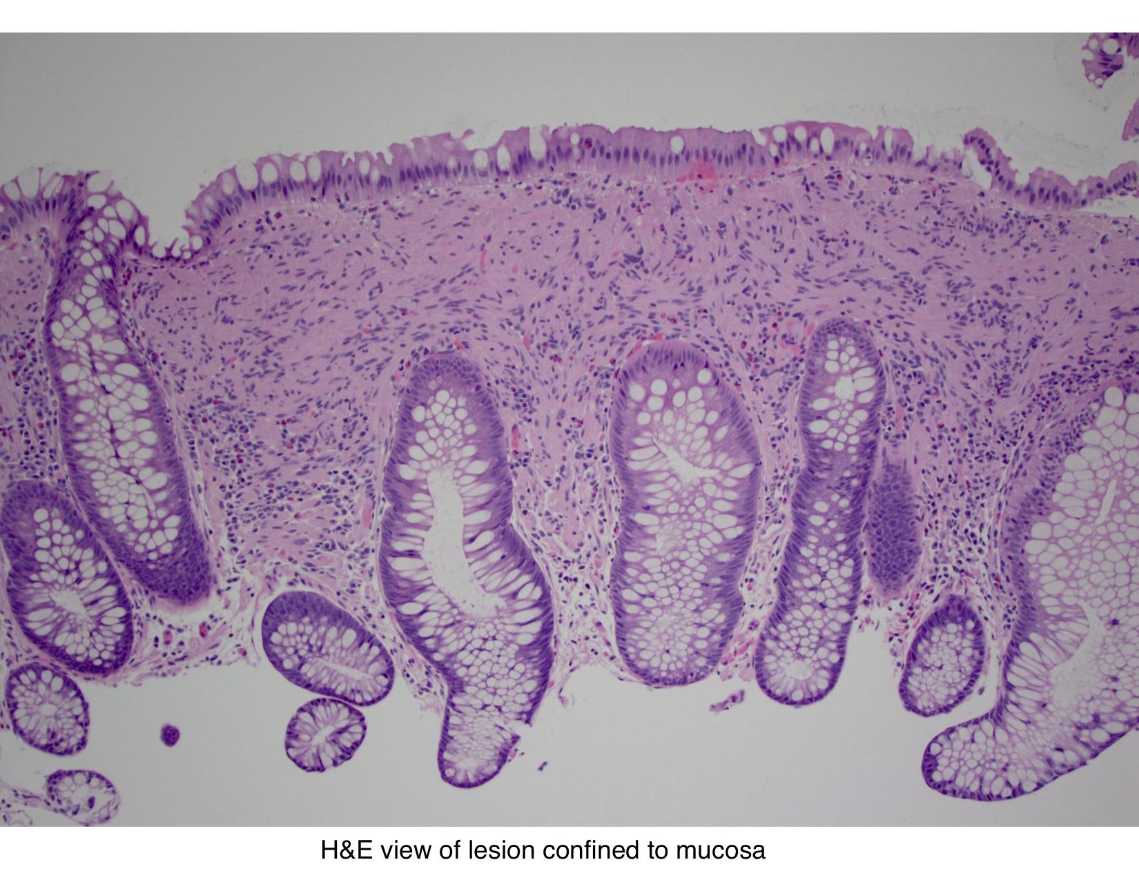 Mucosal Neuroma Histology Pathology Outlines - M...