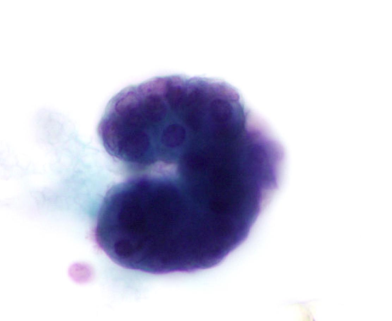 Endosalpingiosis (NFM)