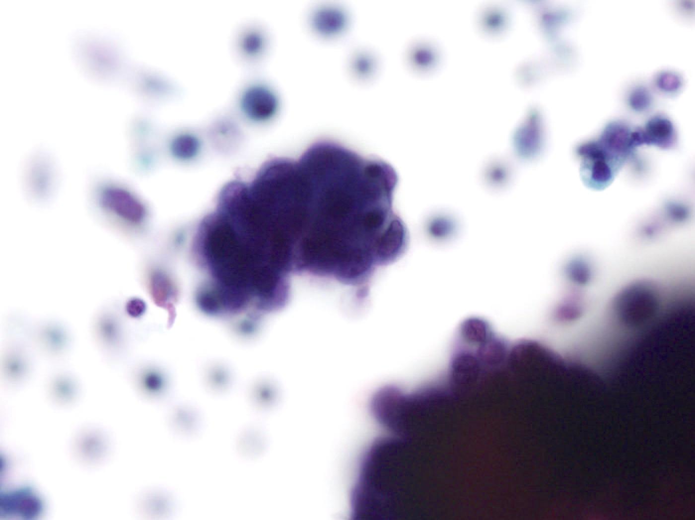 Serous borderline tumor (AUS)