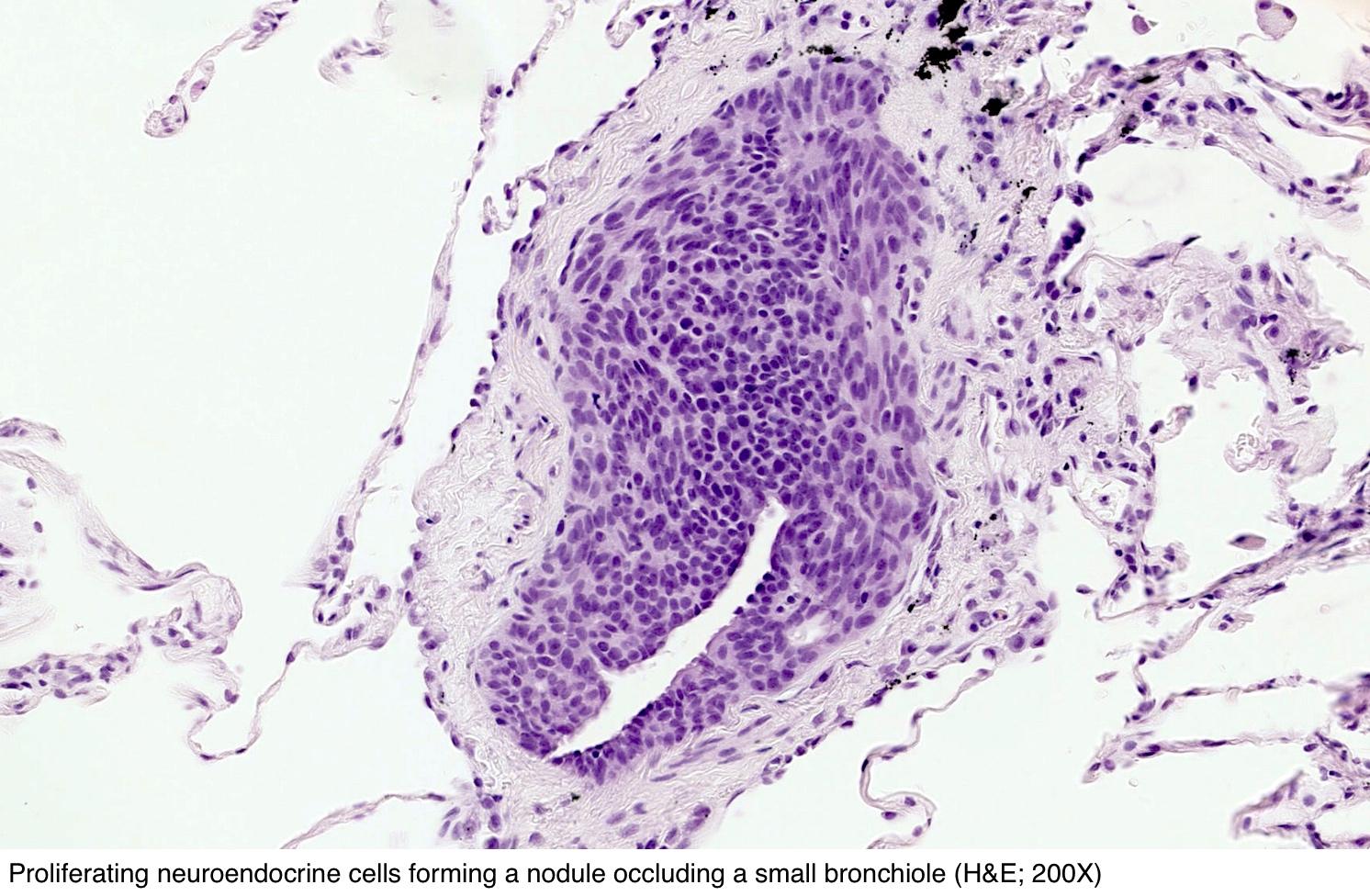 Nodule occluding a bronchiole