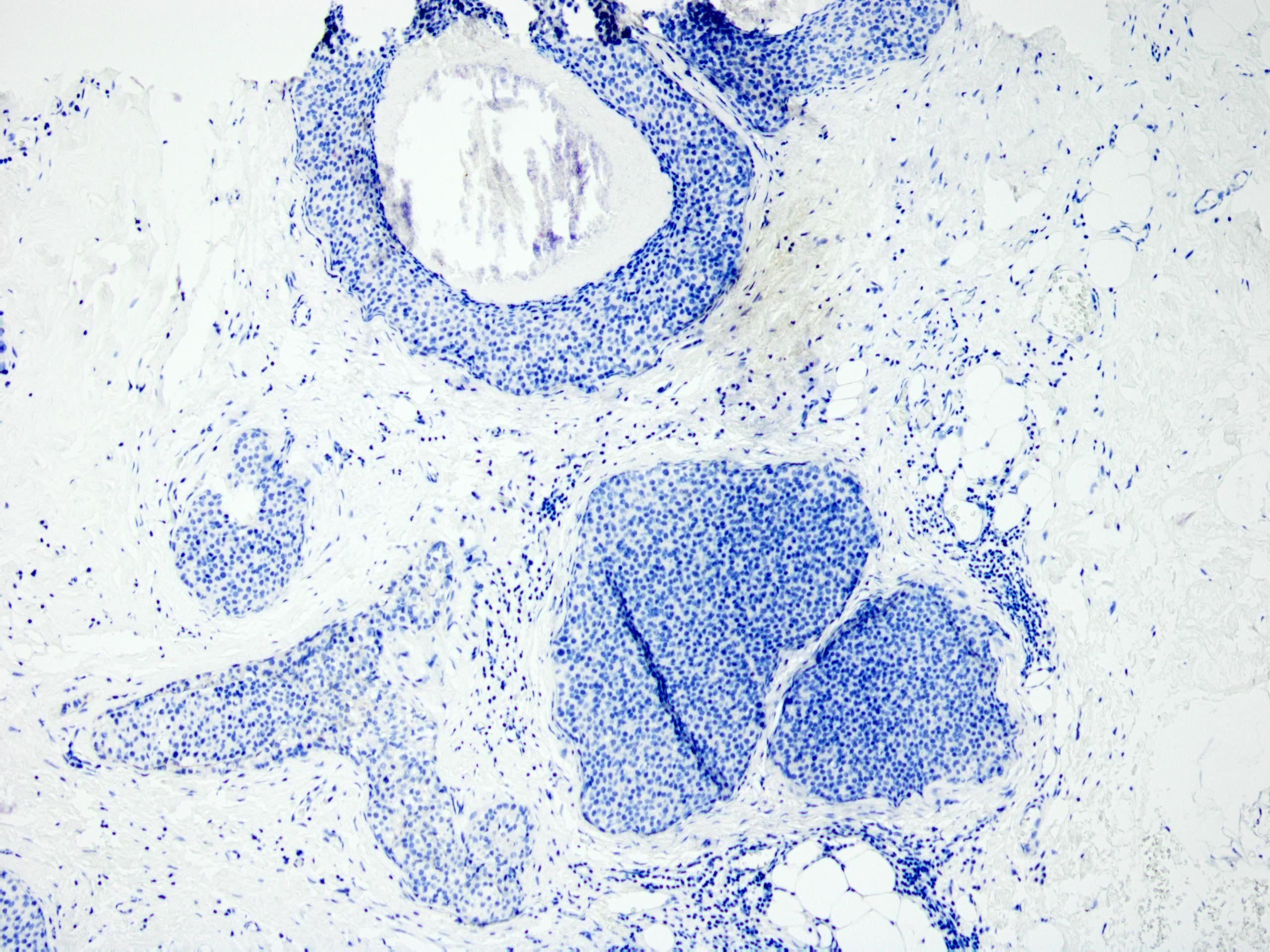Florid lobular carcinoma in situ