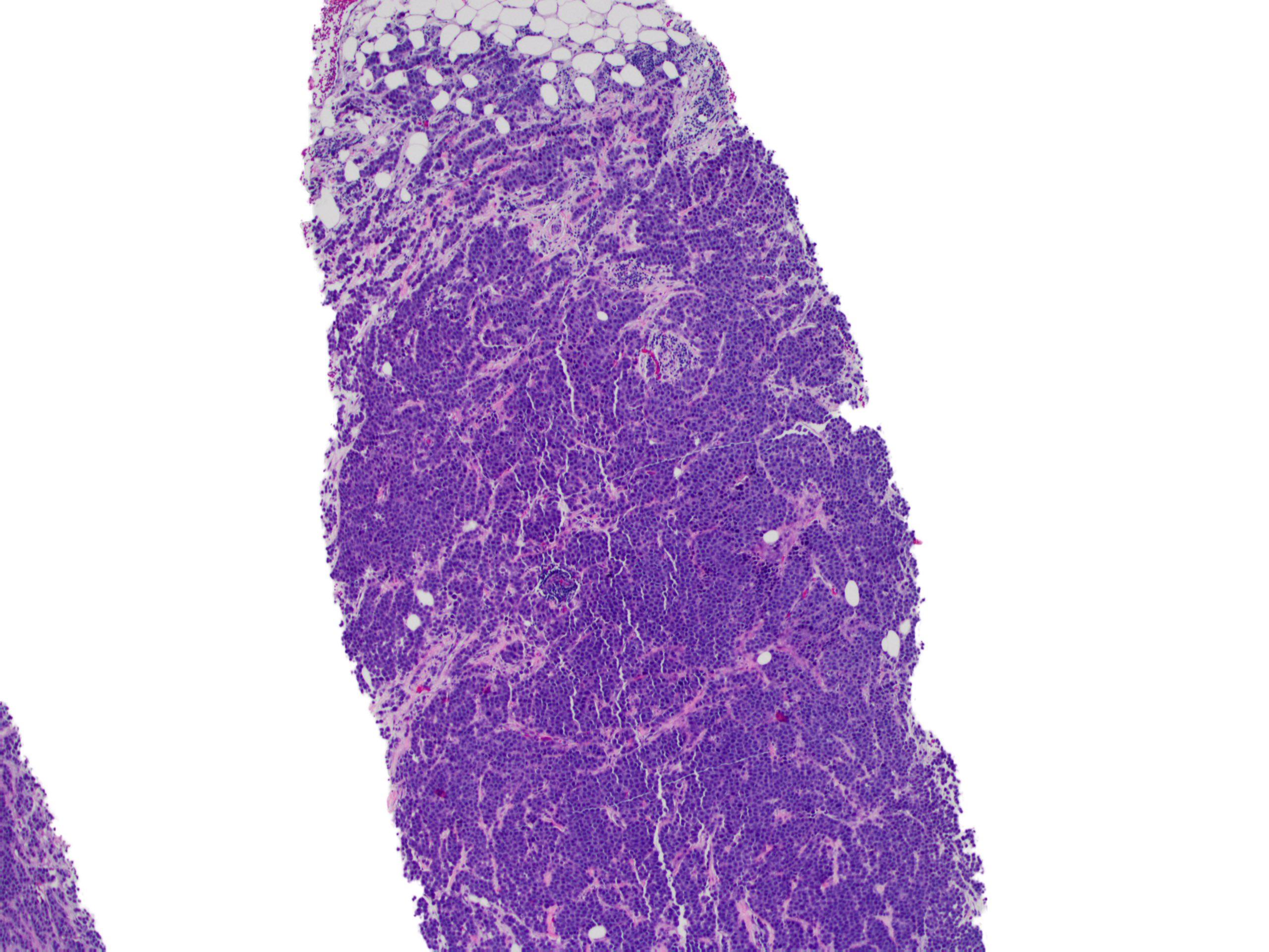 Invasive lobular carcinoma of the breast