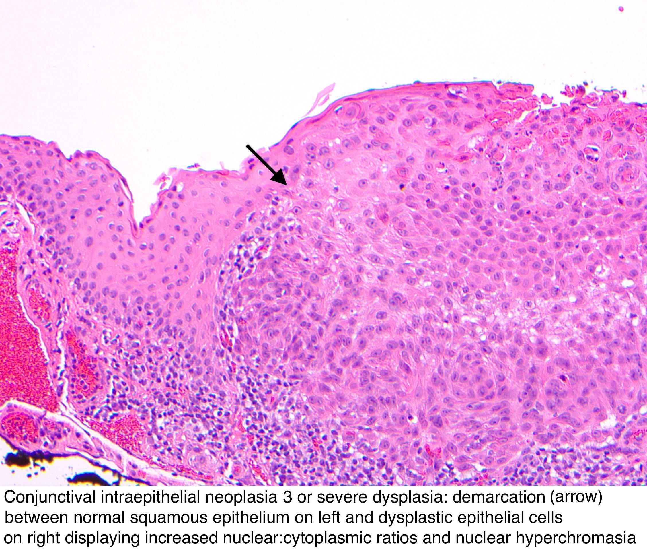 Squamous papilloma with dysplasia., Squamous papilloma dysplasia