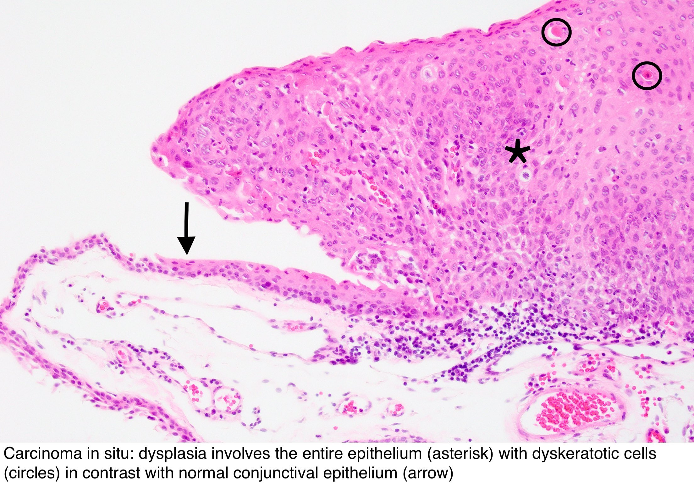 Conjunctival papilloma pathology outline