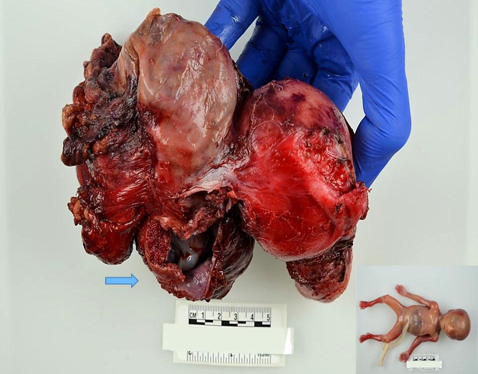 Placenta and fetus