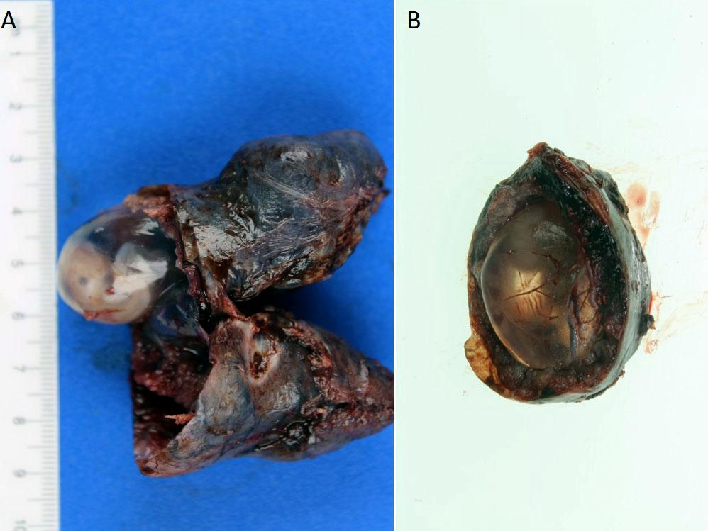 Gestational sac and embryo