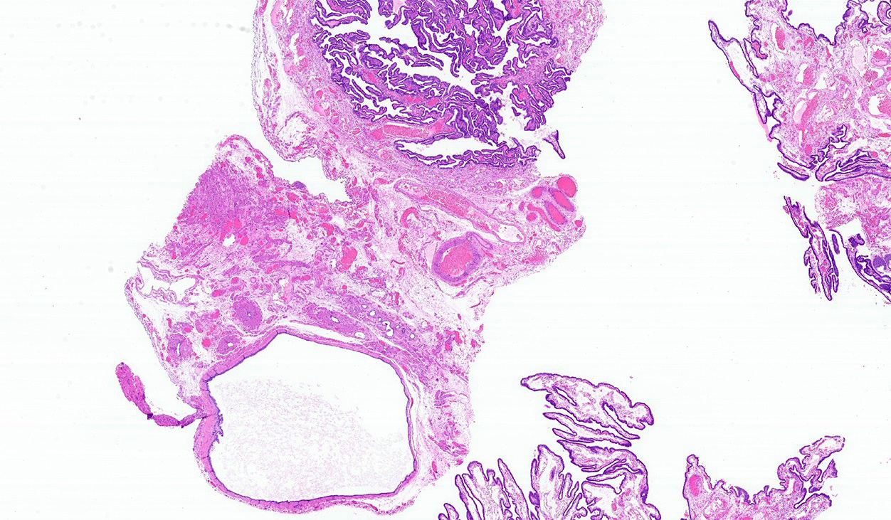 Simple cyst near tube