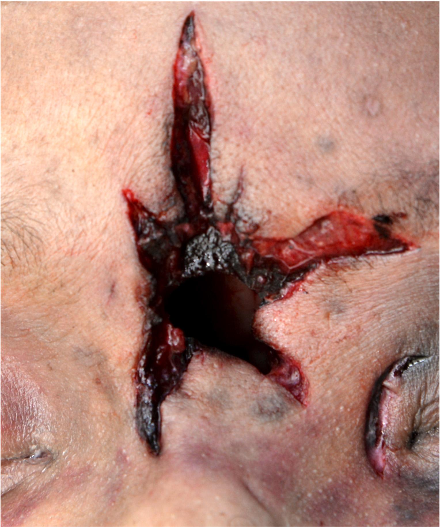 Hard contact entrance gunshot wound