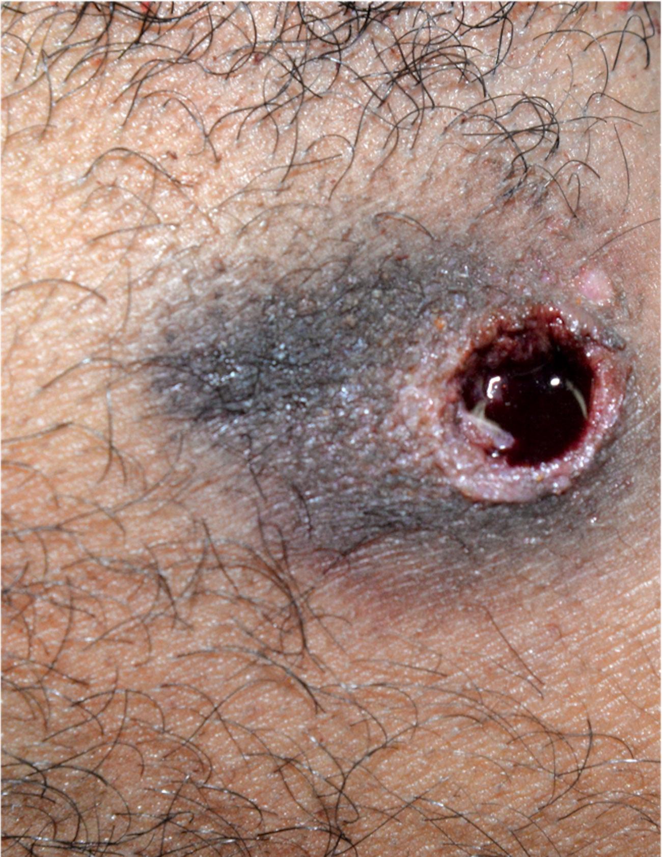 Loose contact entrance gunshot wound