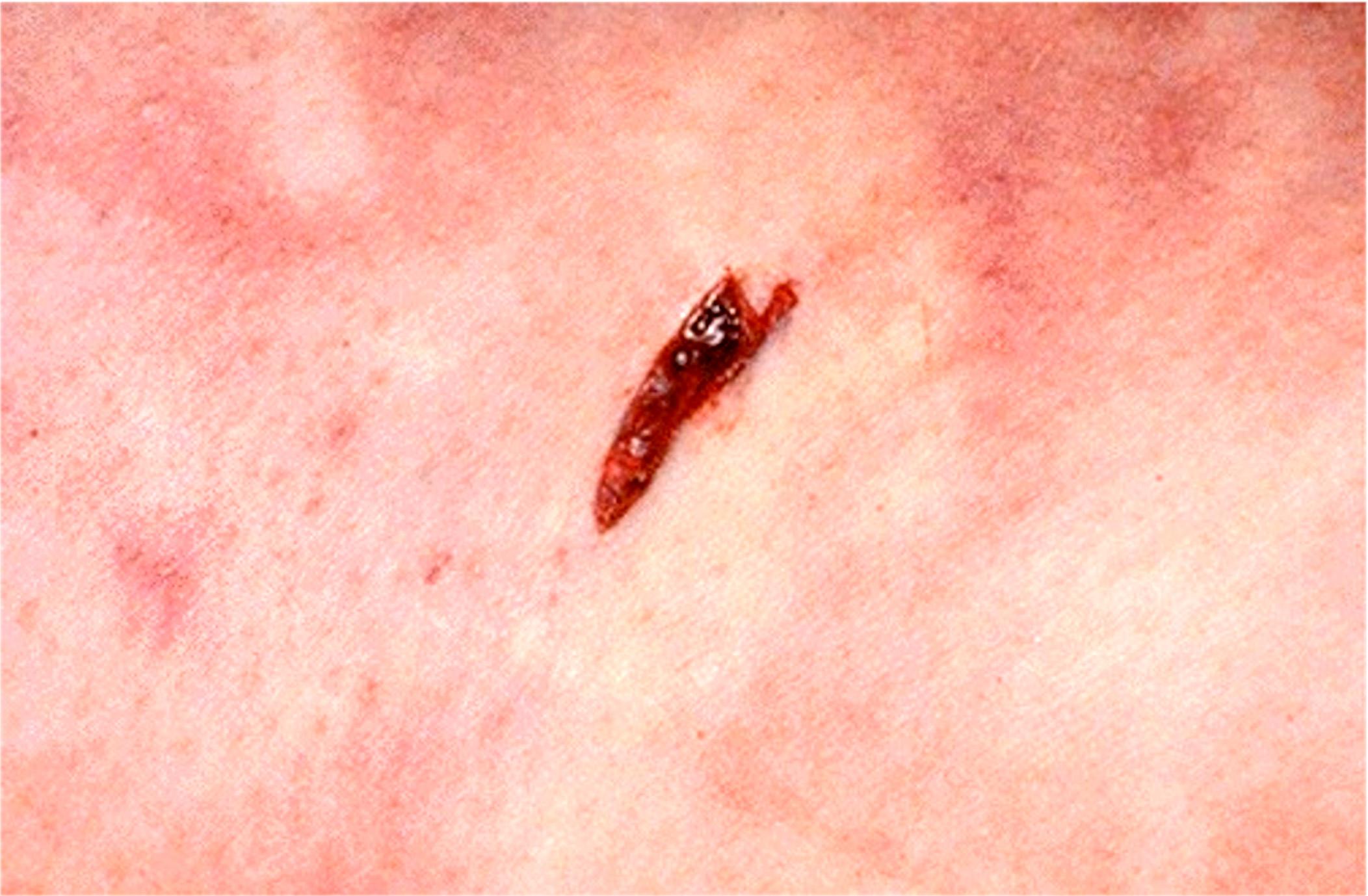 Exit gunshot wound