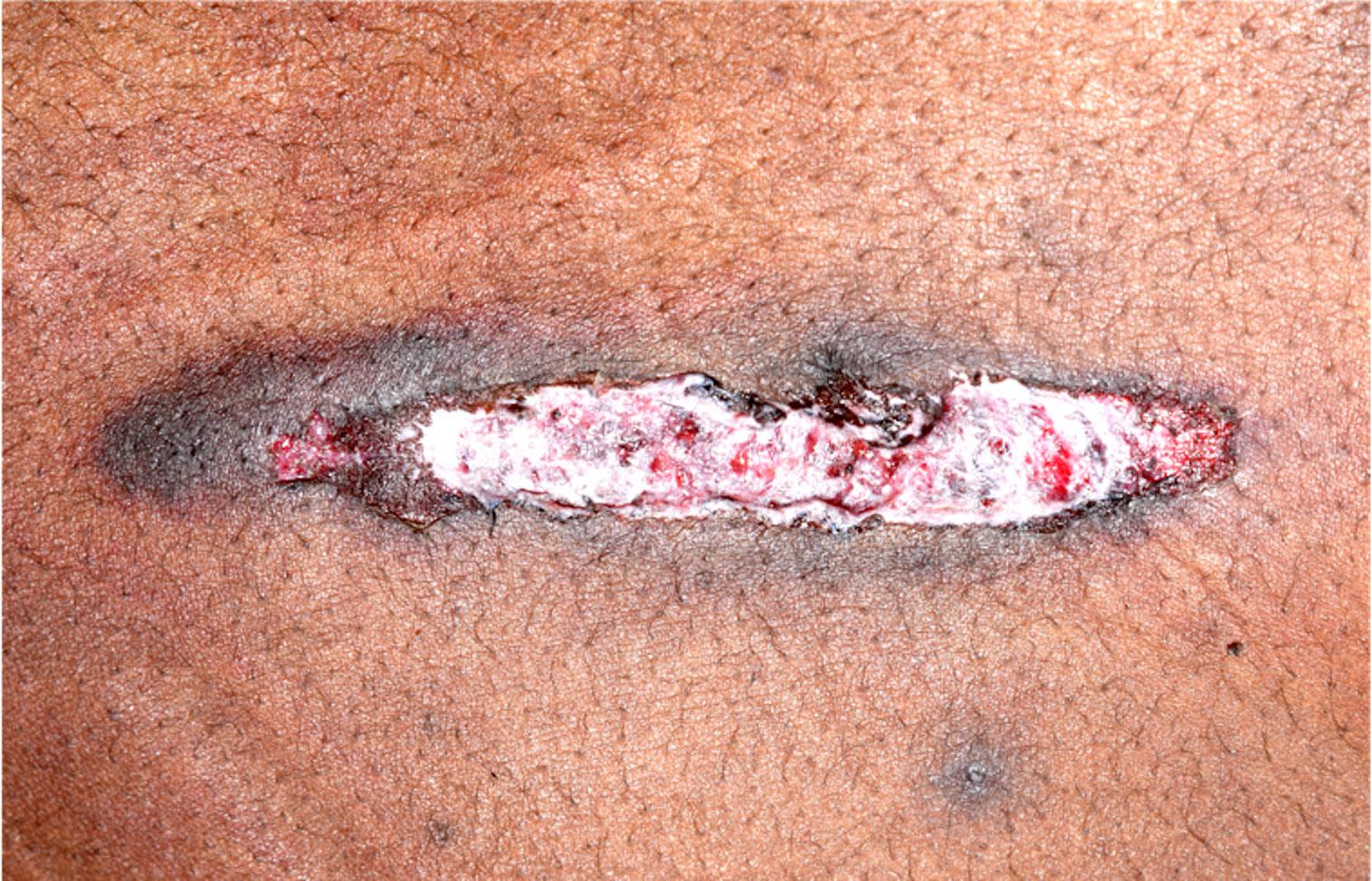 Graze wound