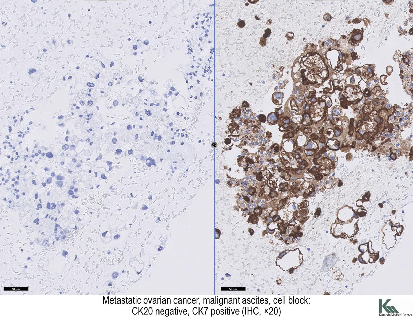A prosztatitis kezelésének következményei A prostatitis tea kezelése a gyógynövényeken