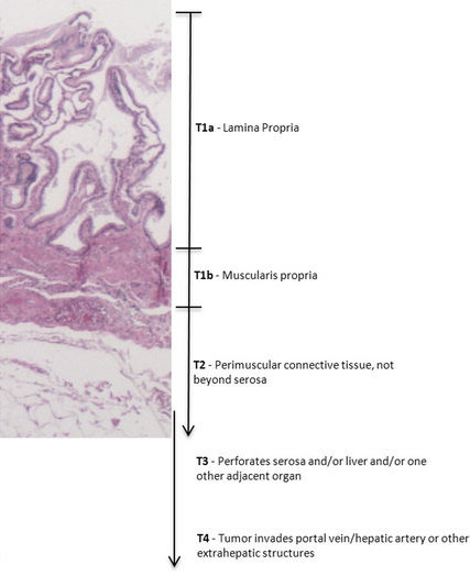 Pathology Outlines Staging Gallbladder And Cystic Duct Carcinoma