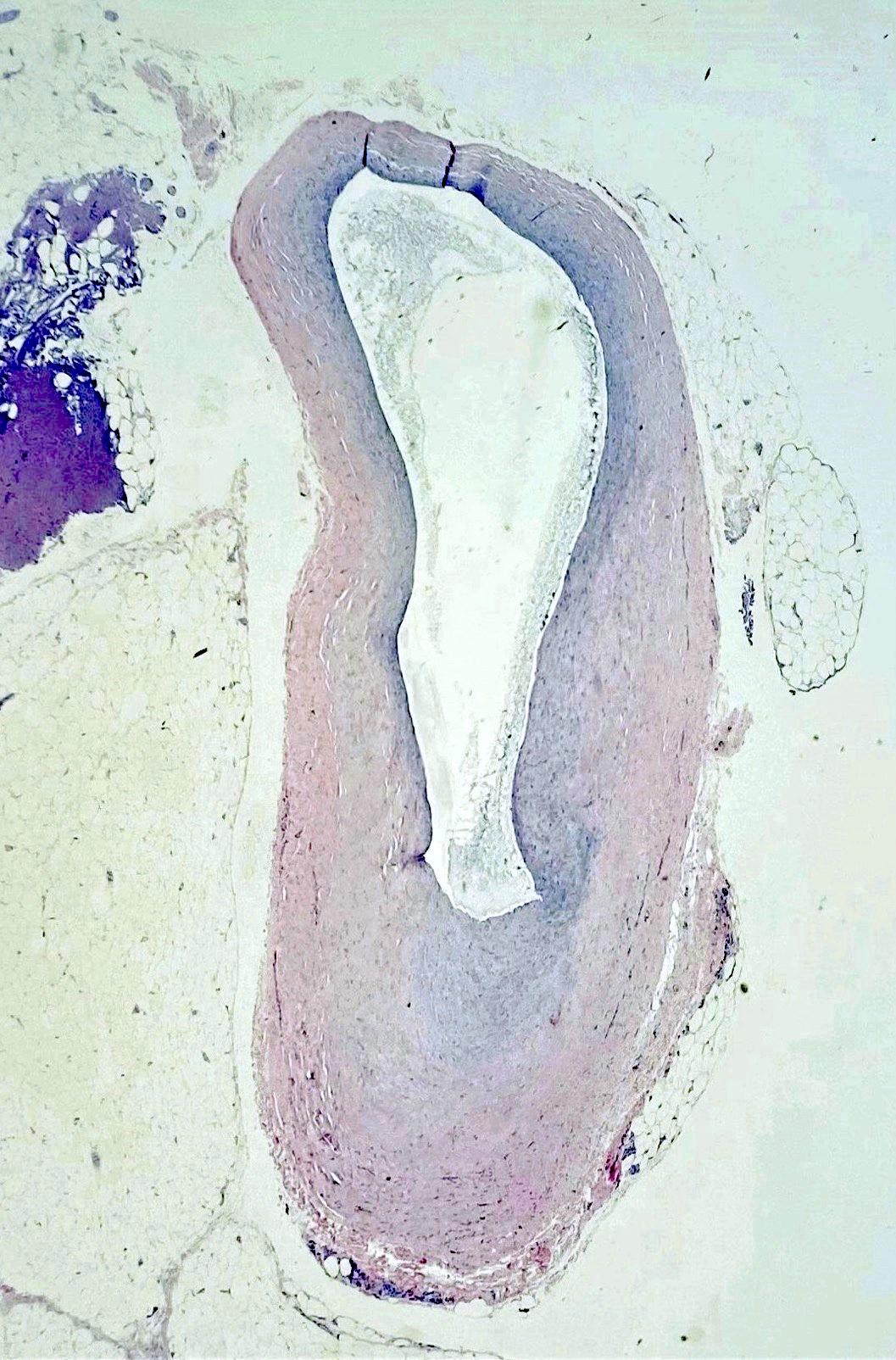 Unilocular ganglion cyst