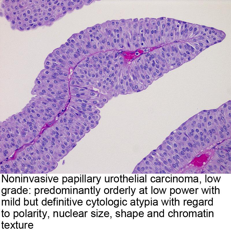 Urothelial papilloma pathology outlines. Urothelial papilloma patho