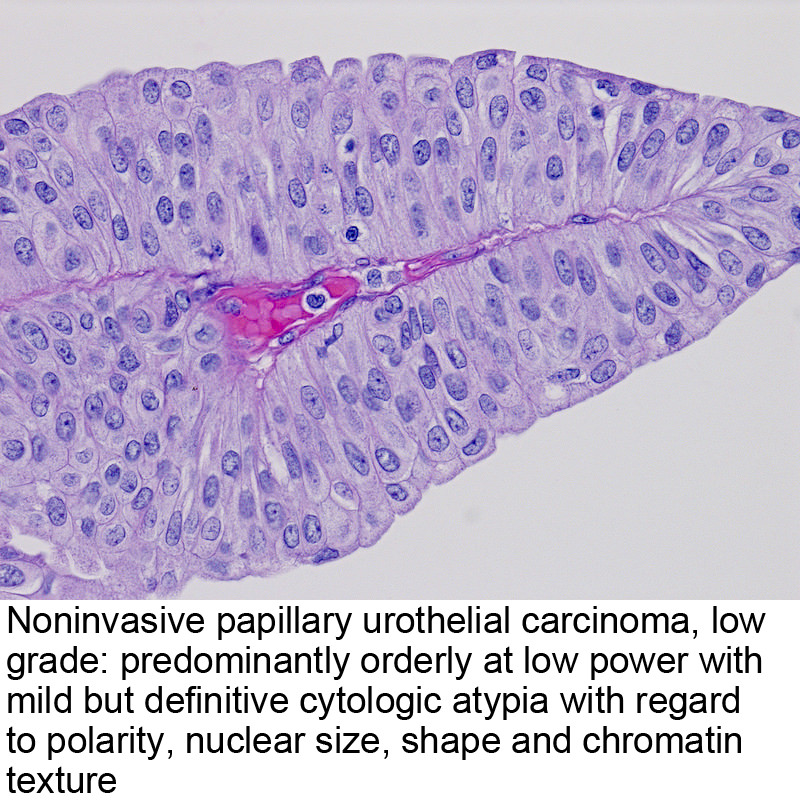 what does papillary urothelial mean)