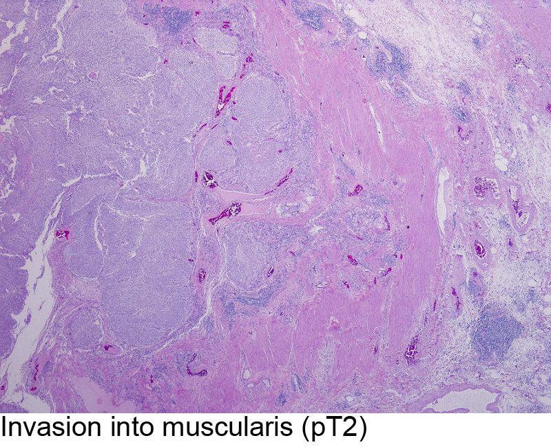 Invasion into muscularis (pT2)