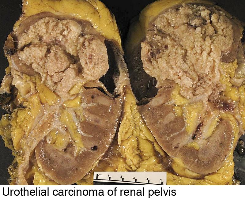 Friable, exophytic papillary mass, renal pelvis