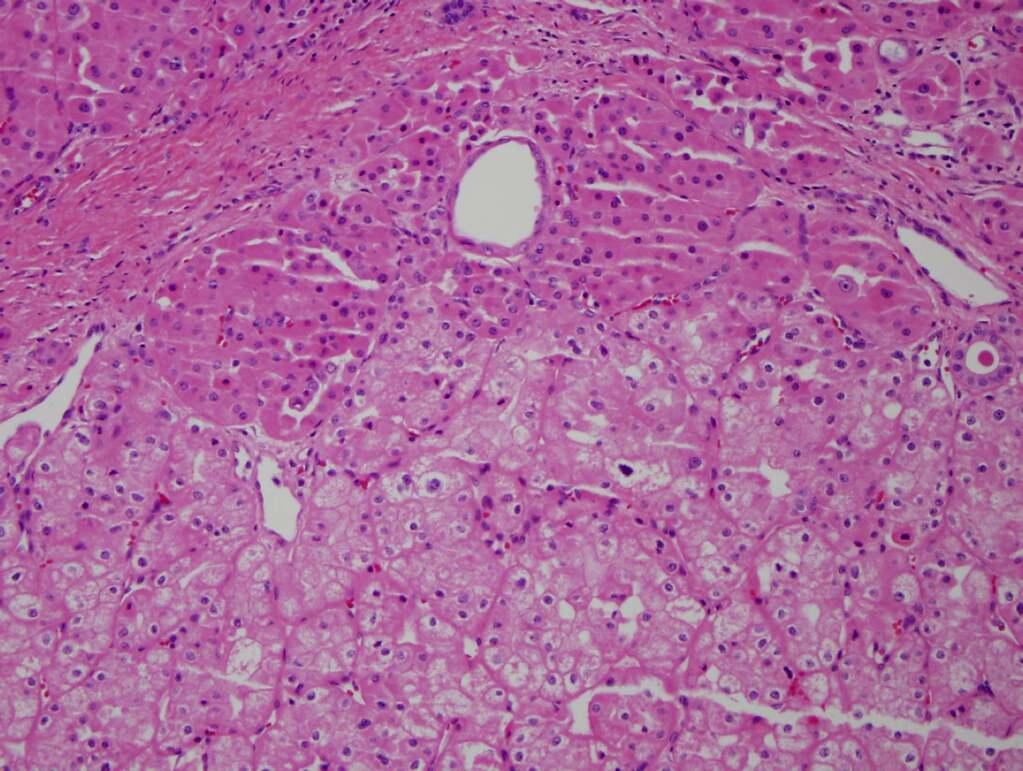Dual population of eosinophilic cells