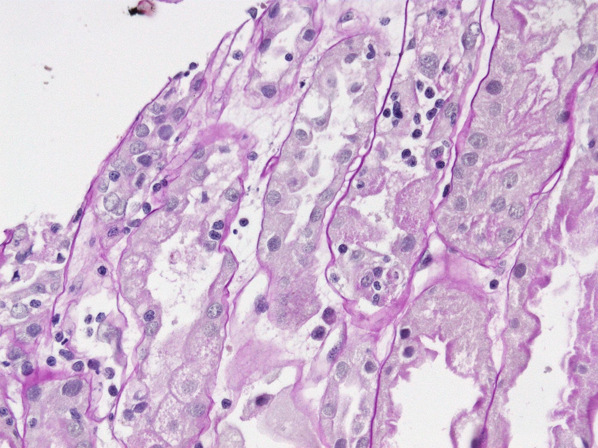 Tubulitis, PAS stain