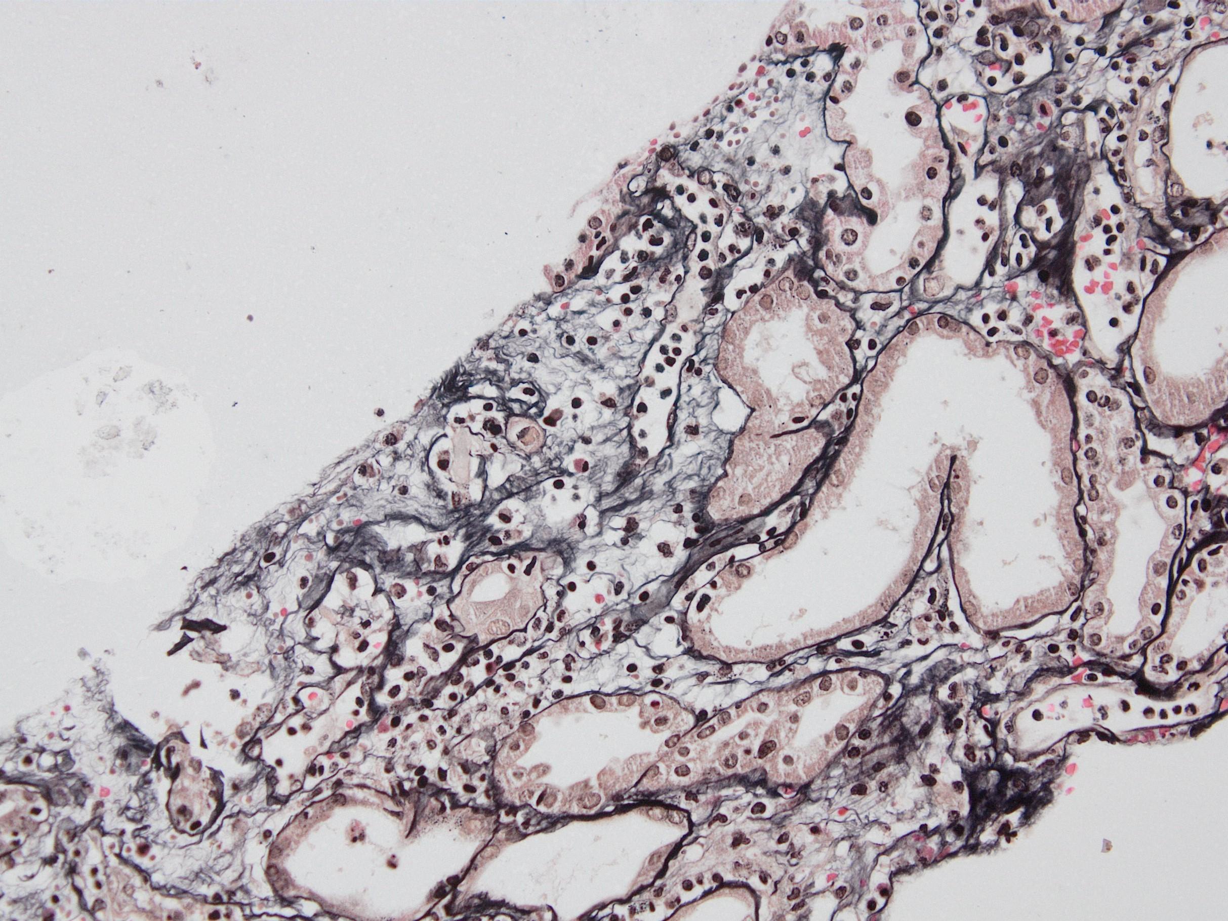 Peritubullary capillaritis, JMS stain