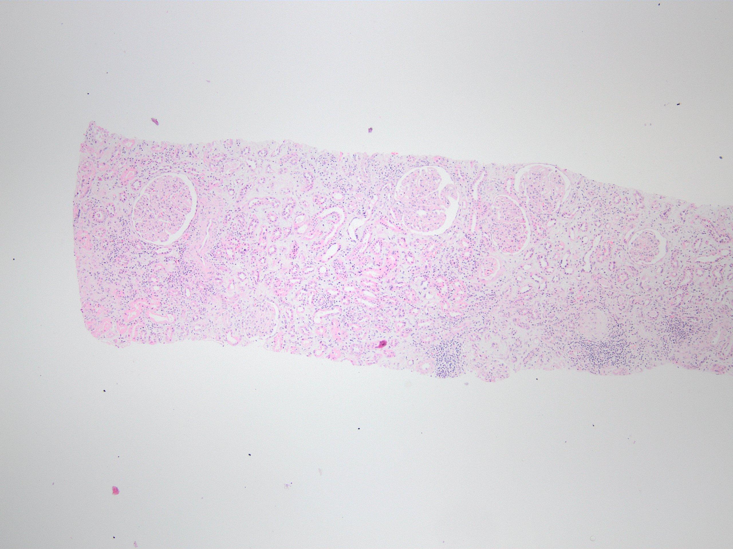 Transplant glomerulopathy