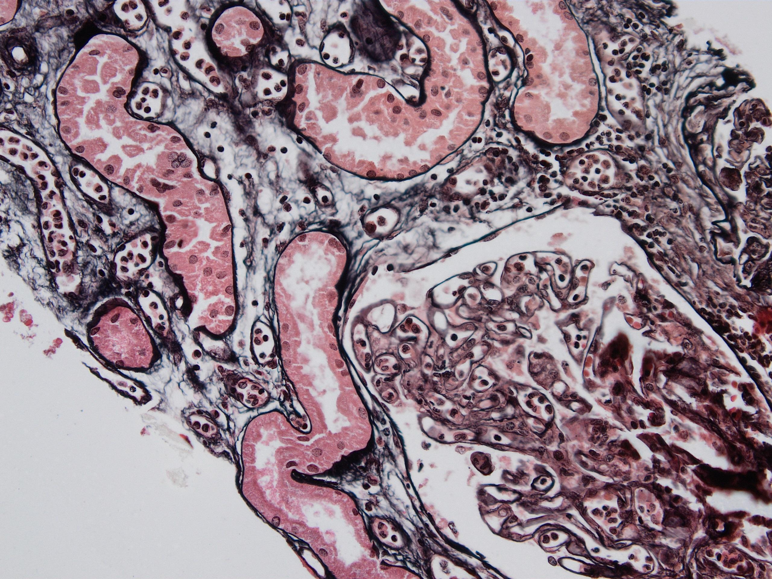 Chronic active ABMR, JMS stain