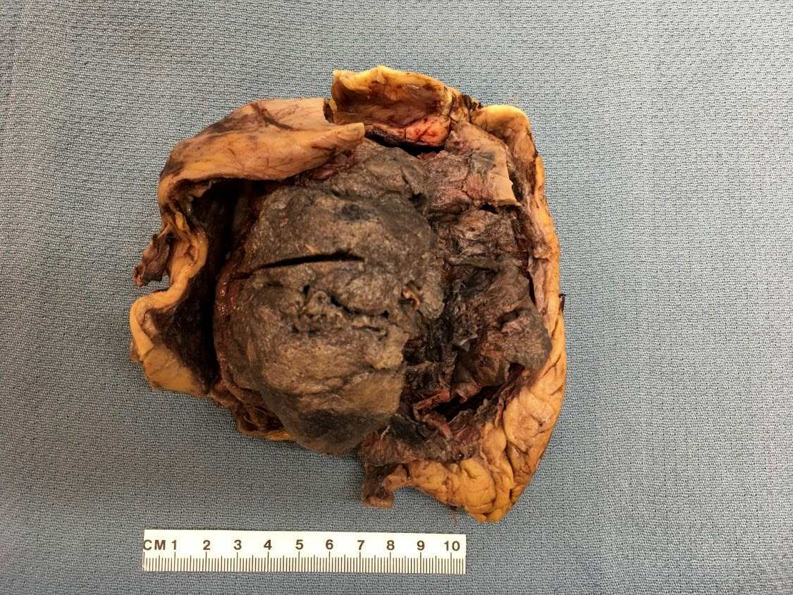 Detached renal capsule