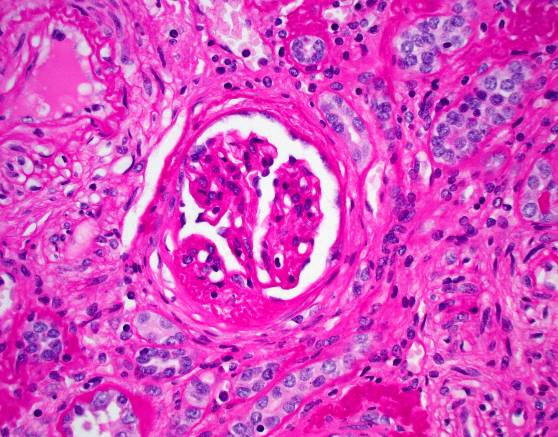 Segmental glomerulosclerosis