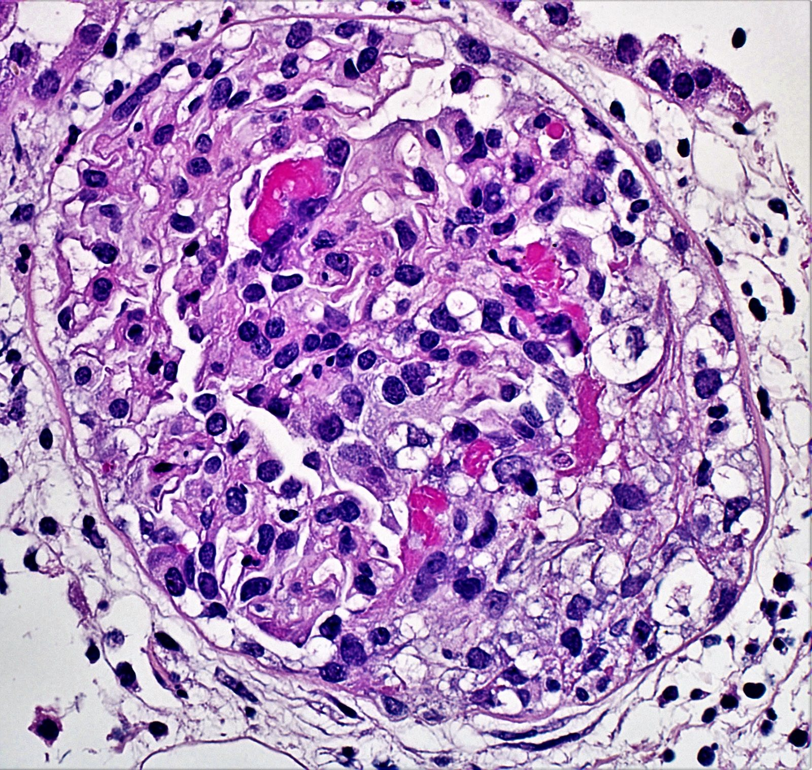 Cellular crescent with fibrin